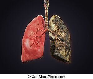 Healthy Lung and Smokers Lung 3D render