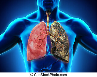 Healthy Lung and Smokers Lung. 3D render