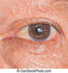 Eye exam - Close up of the anterior chamber IOL during eye...