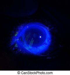 Eye exam - Close up of the deep corneal abrasion during eye...
