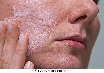 Acne treatment - Cream applying to problematic female skin...