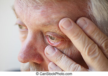 Tired senior man shows lower eyelid - older man has fatigue...