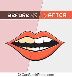 Retro Vector Mouth Illustration - Cleaning Teeth Symbol