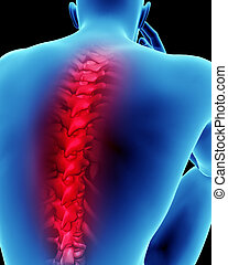 Human back pain spinal cord concept