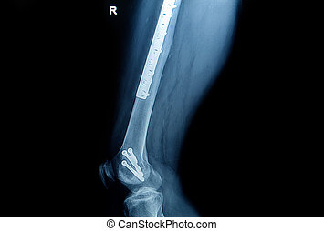 x-ray image of fracture leg femur with implant plate and...