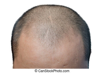 bald head - The bald head on the white background.