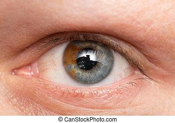 eyes of a man with a birthmark. macro
