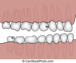 jaw vector - Figure jaw with teeth closeup made in vector...