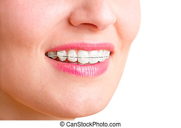 Braces - Closeup of a mouth with braces on teeth and the...