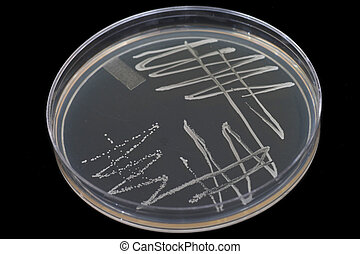 Bacteria colonies growing on an agar plate.
