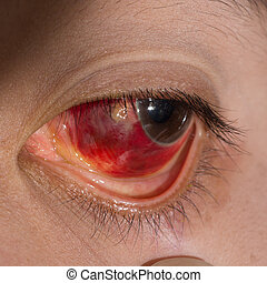 Eye exam - Close up of the large sub conjunctival...