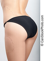 Body correction with the help of plastic surgery,...