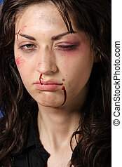 Abused woman, beaten up