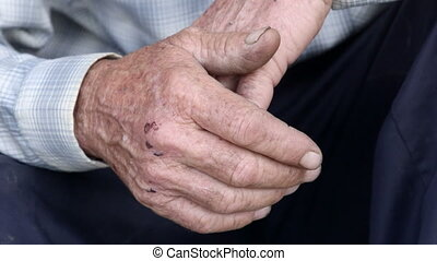 Scraped overworked hands of senior man