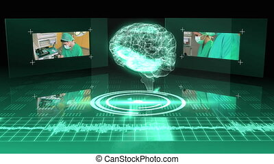 Revolving brain graphic with interface with surgery clips on...