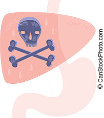 Kidney Cancer - A concept for liver cancer or liver disease.
