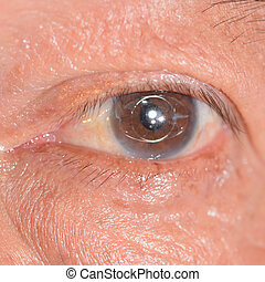 Eye exam - close up of the anterior intra ocular lens during...