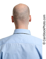 adult man bald head rear view. Human hair loss