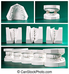 dental study models on green - Compilation picture of dental...