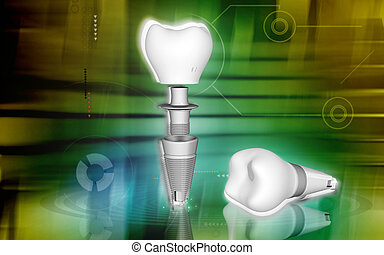 Dental implant - Digital illustration Dental implant in...