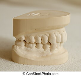 Dental gypsum model mould of teeth