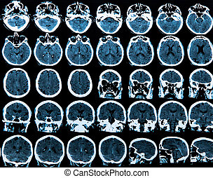 Mri Brain Scan - MRI scan of the human brain