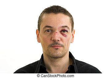 broken nose - man with broken, crooked nose and black eye...
