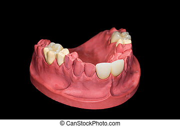 Dental ceramic crowns on gypsum model on isolated black...