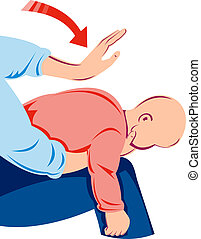 Infant heimlich maneuver - Illustration of the infant...