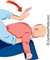 Infant heimlich maneuver - Illustration of the infant...