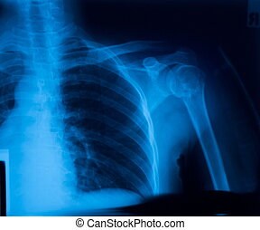 X ray film of clavicle fracture.