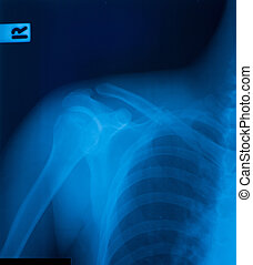 X-ray film of shoulder fracture.