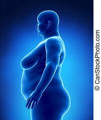 femmina, obesità, concetto, sinistra