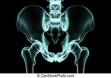 X-ray hip in brightness blue with black background