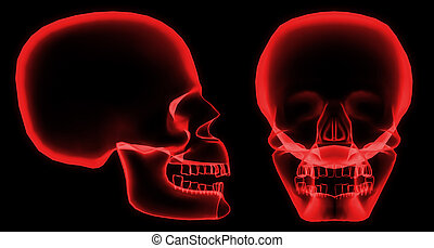 X-ray skull - X-ray front and side skull in red with black...