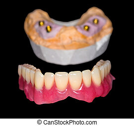 Removable denture and gypsum model on isolated black...