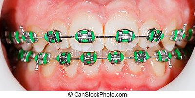 Braces on teeth - Closeup photo of orthodontic braces on...