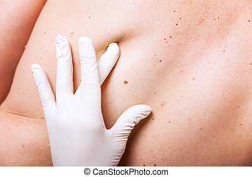 skin examination of moles - skin examination with lot of...
