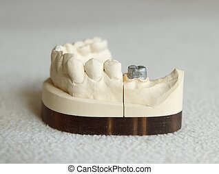 Zirconium or porcelain crown preparation on cast model