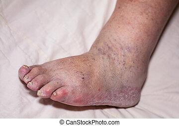 Senior leg problems - Detail of ill senior female swollen...