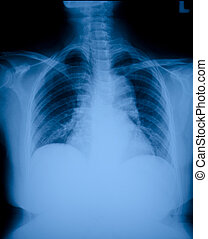 X ray film - Pneumonia patients x-ray film