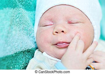 acne neonatorum -  newborn baby  with baby rash,