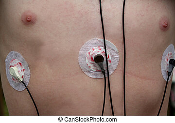 Heart Monitor Leads on Chest - Closeup of the chest of a...