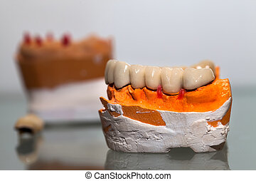 Zirconium Porcelain Tooth plate in Dentist Store