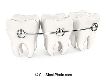 Teeth with braces isolated on white background. 3d rendering...