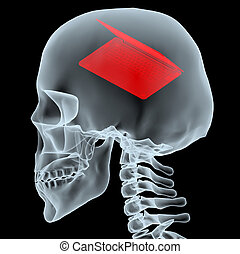 X-ray of a head with notebook instead of the brain, 3d...