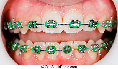 Braces on teeth - Closeup photo of orthodontic braces on...