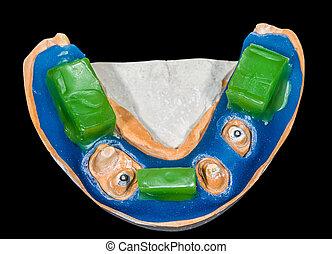 模型, 咬, 牙齒, 登記