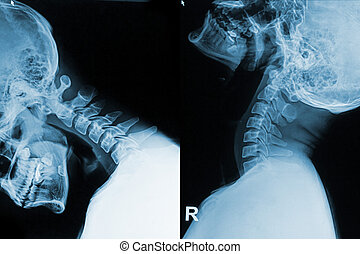 x-ray image of neck show neck pain in flex and exten...