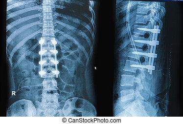 Raio X, imagem, costas, dor, mostrar, espinhal, coluna,...